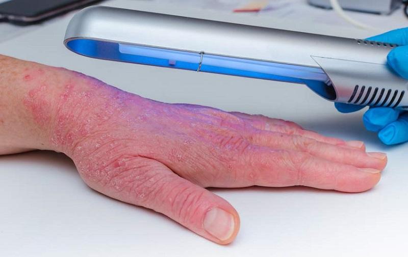 Fototerapija za luskavico
