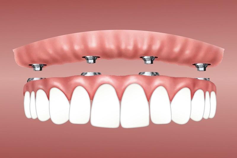 Vstavitev zobnega implantata